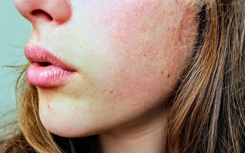 乾燥肌におすすめな美容オイル7選